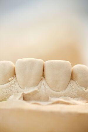 surgery expenses: Plaster cast of upper front teeth in a dental lab