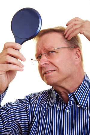 scalp: Eldery man watching his receding hair line in mirror Stock Photo