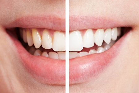 Comparison of teeth before and after bleaching session Stock Photo - 9515714