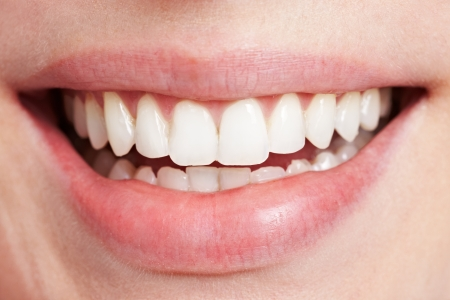 denture: Happy smiling female mouth with white teeth Stock Photo