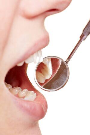 Mujer en el dentista con espejo cerca de sus dientes