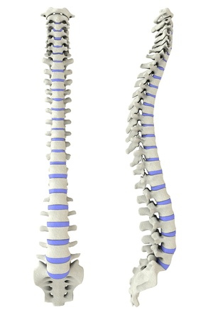 herniated: Human spine from side and back in 3D with intervertebral discs marked Stock Photo