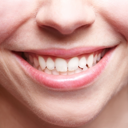 gums: Close-up of smiling female mouth with bright teeth showing