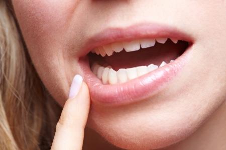 pangs: Donna con dolore nel suo gengive che tiene il dito in bocca