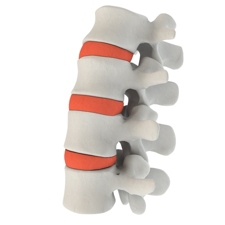 intervertebral: Intervertebral discs in a spine marked with red color