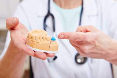Hands of dental technician showing dentures with corona Stock Photo - 18176852
