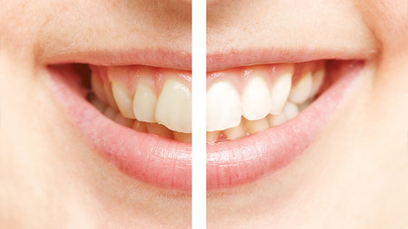 tooth cleaning: Comparison between white teeth after bleaching and before teeth whitening