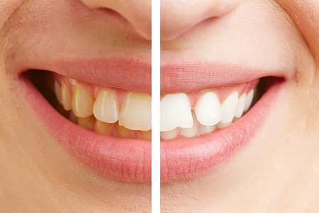 white teeth: Before and after comparison of teeth whitening of a young woman Stock Photo