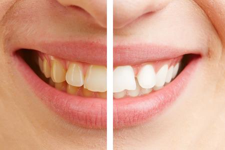 Vor und nach dem Vergleich der Zahnaufhellung einer jungen Frau, Lizenzfreie Bilder