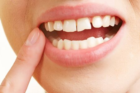 Frau mit einer Entzündung des Zahnfleisches in den Mund Finger auf schmerzenden Zahn hält,