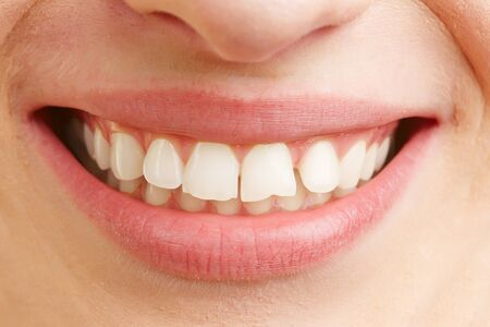 dental calculus: Closeup of smiling mouth of a woman with white teeth