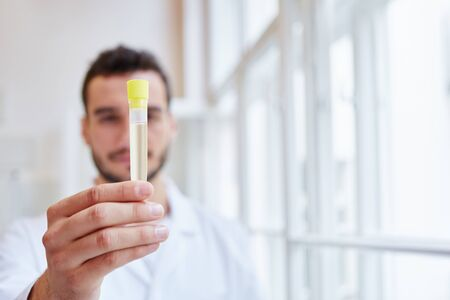 Doctor rungs urine sample analysis in lab at hospital