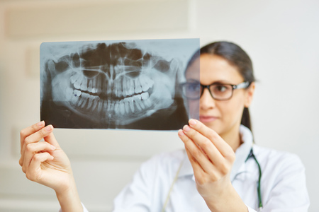 X-ray image of denture in dentist office holded by doctor
