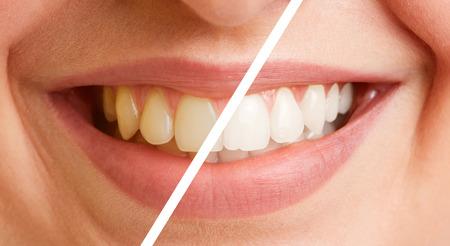 Comparación de los dientes de una mujer joven antes y después de una limpieza dental