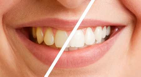 Comparison of teeth of a young woman before and after a tooth cleaning 写真素材