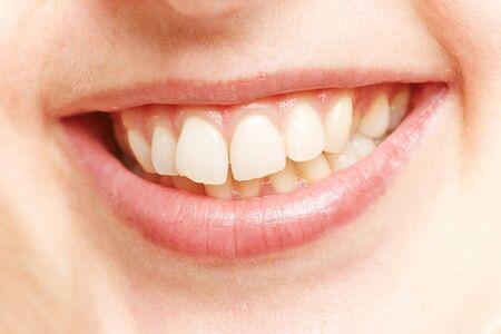Białe zęby w uśmiechniętych ustach młodej kobiety