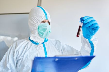 Researcher in clinic using Covid-19 blood sample for antibody test in coronavirus crisis