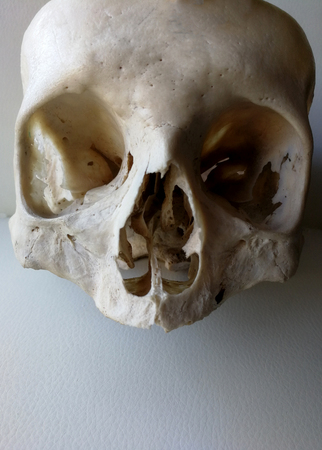 Human Female Skull For Anatomy Study Stock Photo, Picture And ...