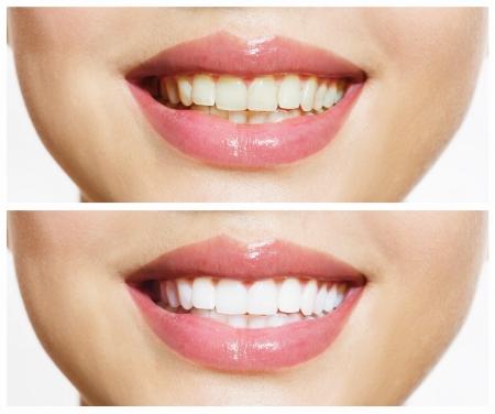 dientes sucios: Dientes de la mujer antes y despu�s del blanqueamiento Cuidado Oral Foto de archivo