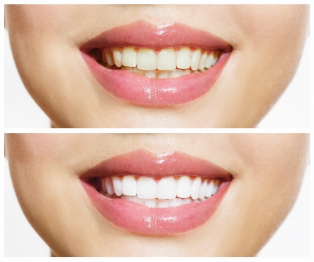 yellow teeth: Woman Teeth Before and After Whitening  Oral Care