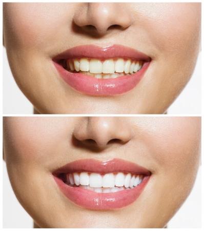 女性の歯ホワイトニングの口腔ケアの前後に 写真素材