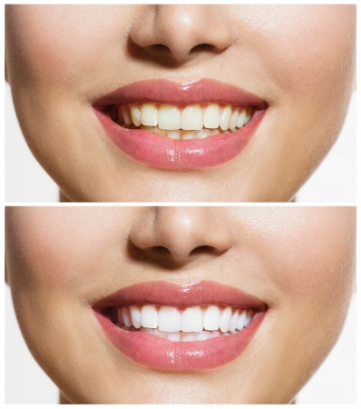 dentition: Woman Teeth Before and After Whitening  Oral Care