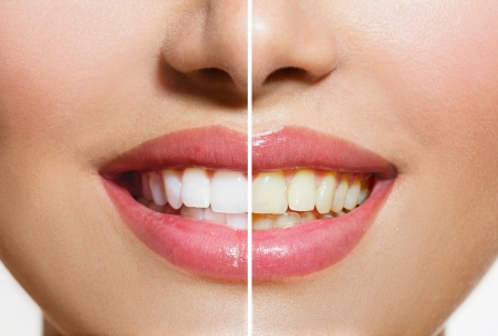 Woman Teeth Before and After Whitening  Oral Care photo