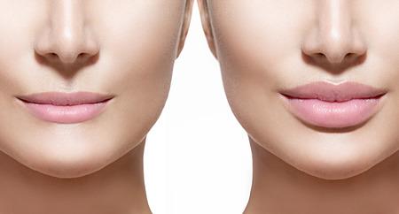 bouche: Avant et après les injections de remplissage des lèvres. Lèvres gros plan sur blanc Banque d'images