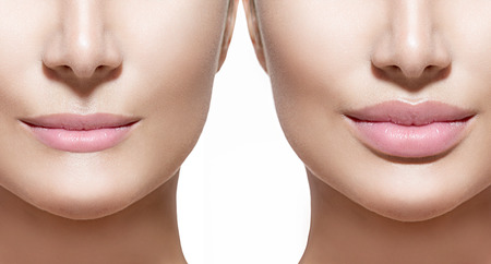Voor en na lip filler injecties. Lippen close-up over wit