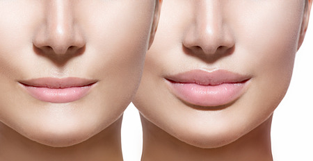 augmentation: Before and after lip filler injections. Lips closeup over white
