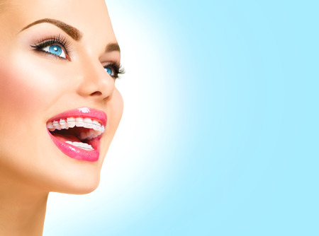 dental: Beautiful woman smiling. Closeup ceramic braces on teeth Stock Photo