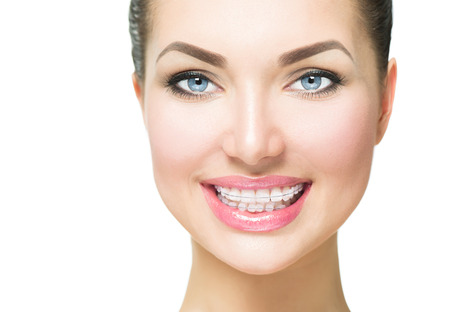 ceramic: Beautiful woman smiling. Closeup ceramic braces on teeth Stock Photo