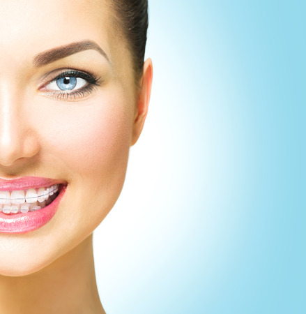 braces: Beautiful woman smiling. Closeup ceramic braces on teeth Stock Photo