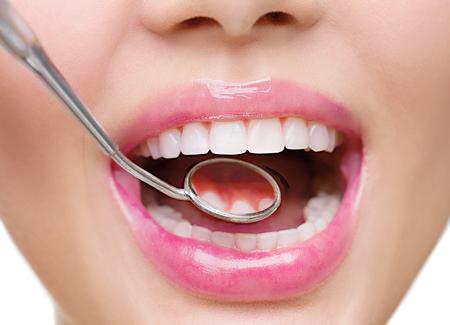 健康な白人女性の歯と歯科医口ミラー クローズ アップ 写真素材