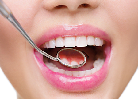 De gezonde vrouw witte tanden en een tandarts mond spiegel close-up