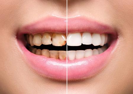 Kobiety zębów przed i po wybielaniu. Higiena jamy ustnej