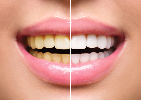 미백 전후의 여성 치아. 구강 관리 스톡 콘텐츠