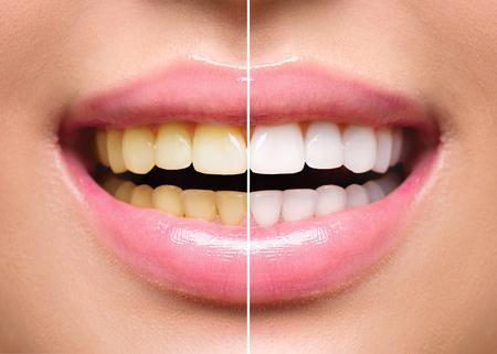tanden vrouw voor en na het bleken. Mondverzorging Stockfoto