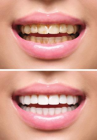 dientes sucios: Dientes de la mujer antes y después del blanqueamiento. Cuidado bucal