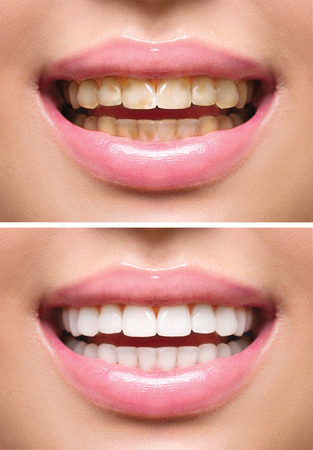 smile close up: Woman teeth before and after whitening. Oral care Stock Photo