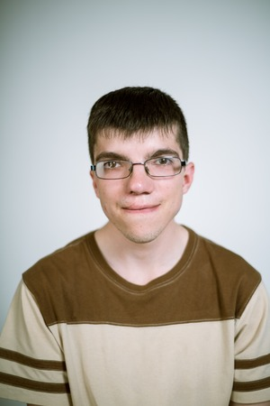 Portrait of a real young man with a cleft lip on a gray background wearing glasses. Shallow depth of field. Focus on the eyelashes. Stock Photo