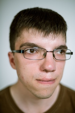 cleft: Portrait of a real young man with a cleft lip on a gray background wearing glasses. Shallow depth of field. Focus on the eyelashes. Stock Photo