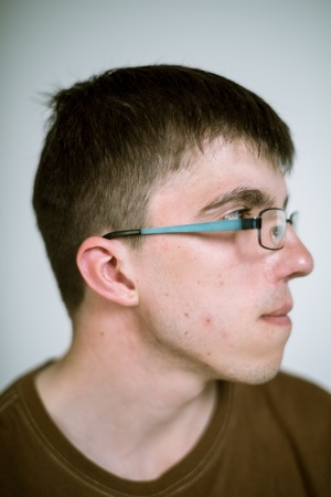 cleft: Portrait of a real young man with a cleft lip on a gray wearing glasses. Focus on the eyelashes.