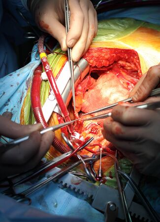 Coronary artery bypass surgery  anastomosis between internal thoracic artery and the coronary artery  Cardiosurgical operation