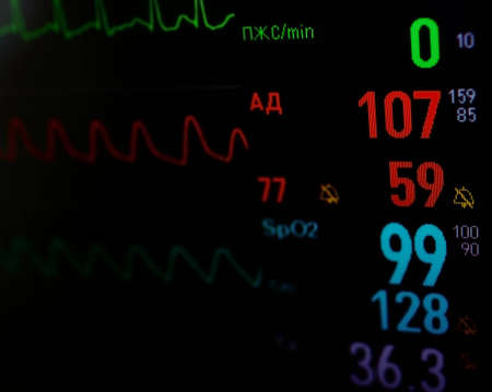 heart monitor: screen medical monitor  stylized picture Stock Photo