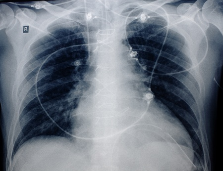 catheter: roentgenogram of patients chest after cardiac surgery. Visible wire joints, electrodes, venous catheter, endotracheal tube. Stock Photo