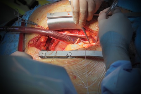 cardiac care: cardiac surgery operation