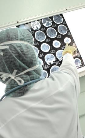 resonancia magnetica: foto de mujer médico, que apunta a la tomografía del cerebro humano