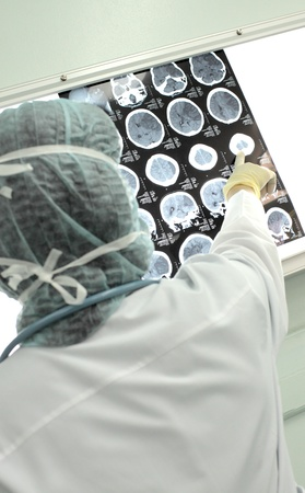 photo female doctor, pointing to the tomogram of the human brain photo