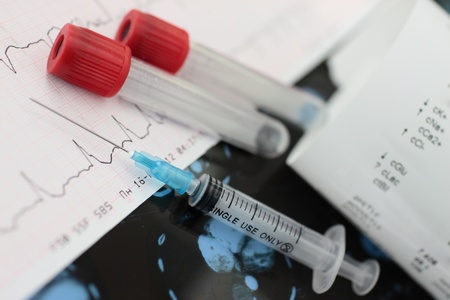 summaries: Medical background  Syringe, tube, form of analysis against a background of ECG, CT scans  The symbols of medicine, laboratory diagnostics, therapy, cardiology